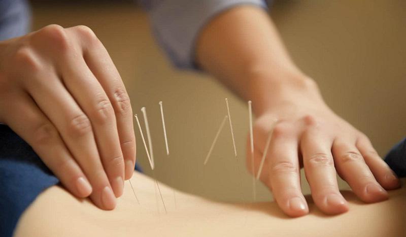 Châm cứu trị đau lưng được y khoa hiện đại công nhận