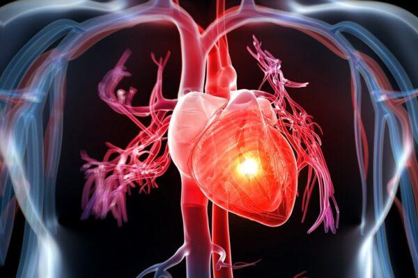 Những nguyên nhân dẫn đến bệnh tim mạch