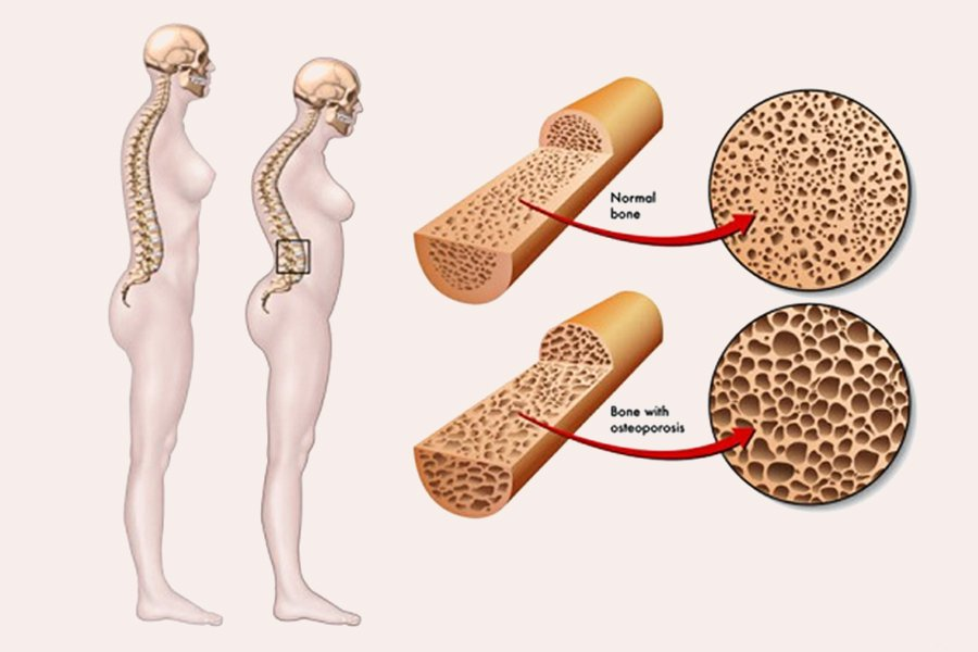những nguyên nhân gây ra bệnh loãng xương
