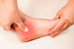 Đau gót chân là bệnh gì?